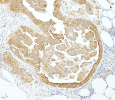 Immunohistochemistry (Formalin/PFA-fixed paraffin-embedded sections) - PABPC4 antibody (ab101492)