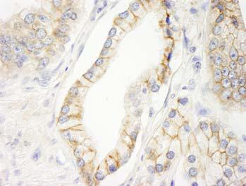 Immunohistochemistry (Formalin/PFA-fixed paraffin-embedded sections) - KIAA0528 antibody (ab101493)