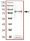 SDS-PAGE - STK38 protein (ab101505)