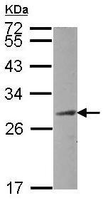 Western blot - CEP27 antibody (ab101508)
