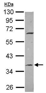 Western blot - METTL2B antibody (ab101510)