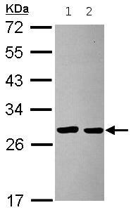 Western blot - ITM2B antibody (ab101522)