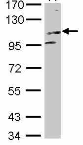 Western blot - KIF17 antibody (ab101526)