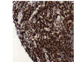 Immunohistochemistry (Formalin/PFA-fixed paraffin-embedded sections) - CD4 antibody [SP35], prediluted (ab101530)
