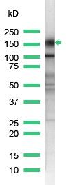Western blot - CD43 antibody [SP55] (ab101533)