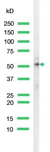 Western blot - Cytokeratin 18 antibody [SP69], prediluted (ab101542)