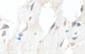 Immunohistochemistry (Formalin/PFA-fixed paraffin-embedded sections) - HMGCLL1 antibody (ab101576)
