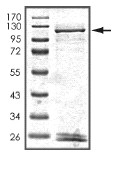 SDS-PAGE - PDE6 alpha protein (ab101586)
