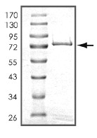 SDS-PAGE - MCK10 protein (ab101591)