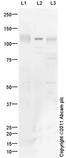 Western blot - Anti-TRPC6 antibody (ab101622)