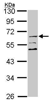 Western blot - SESN2 antibody (ab101626)