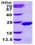 SDS-PAGE - MDP1 protein (ab101631)