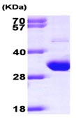 SDS-PAGE - TIGAR protein (ab101635)