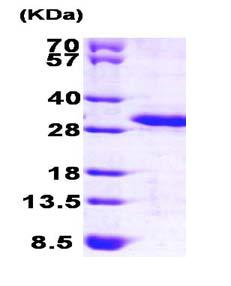 SDS-PAGE - PREI3 protein (ab101639)