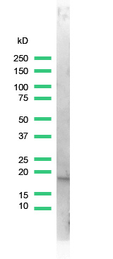 Western blot - Stathmin 1 antibody [SP49] (ab101690)
