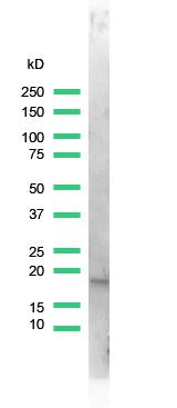 Western blot - Stathmin 1 antibody [SP49] (ab101690)