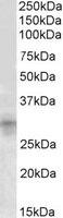 Western blot - IGFBP7 antibody (ab101714)