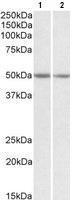 Western blot - Anti-G protein alpha S antibody (ab101736)