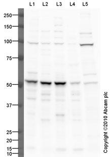 Western blot - Anti-CSAD antibody (ab101847)