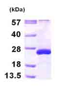 SDS-PAGE - ARL5A protein (ab101943)