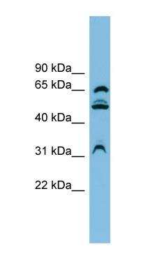 Western blot - WDR1 antibody (ab101945)