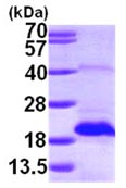 SDS-PAGE - MSRB2 protein (ab101946)