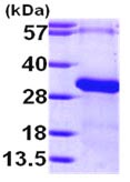 SDS-PAGE - RGS19 protein (ab101949)