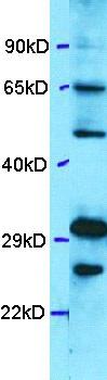 Western blot - Anti-DRGX antibody (ab101957)