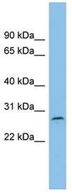 Western blot - C1orf104 antibody (ab101964)