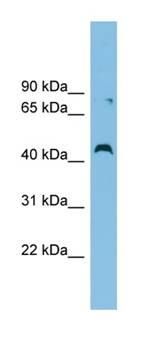 Western blot - CCBE1 antibody (ab101967)