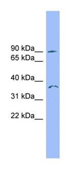 Western blot - SDCCAG8 antibody (ab101969)