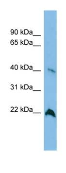 Western blot - TGDS antibody (ab101970)