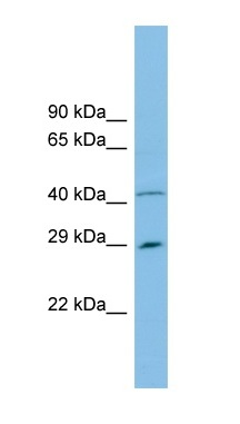 Western blot - C9orf152 antibody (ab101976)