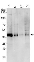 Western blot - Junctional Adhesion Molecule 1 antibody (ab101978)