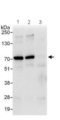 Immunoprecipitation - Gigaxonin antibody (ab101991)