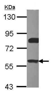 Western blot - ERM / Etv5 antibody (ab102010)