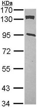 Western blot - CDKN1A interacting zinc finger protein 1 antibody (ab102013)