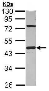 Western blot - Anti-G protein alpha inhibitor 1 antibody (ab102014)