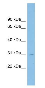 Western blot - SPATA9 antibody (ab102017)