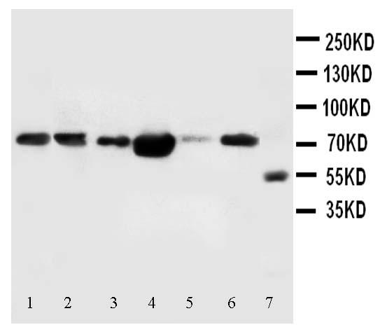Western blot - FAF1 antibody (ab102018)
