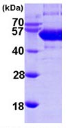 SDS-PAGE - Soluble Liver/Pancreas Antigen  protein (ab102021)