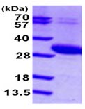 SDS-PAGE - UCK2 protein (ab102023)