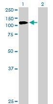 Western blot - EDR1 / PHC1 antibody (ab102038)