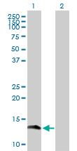 Western blot - Gemin 7 antibody (ab102042)