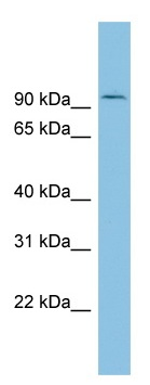 Western blot - TLK1 antibody (ab102043)