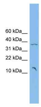 Western blot - LOC441253 antibody (ab102072)