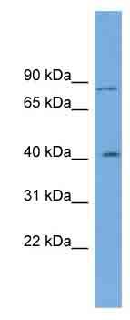 Western blot - CPXM antibody (ab102073)