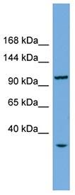 Western blot - CHTF18 antibody (ab102076)