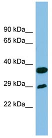 Western blot - RTP4 antibody (ab102078)