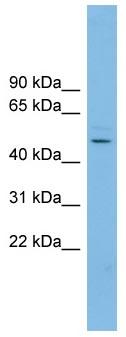 Western blot - NKAPL antibody (ab102081)